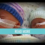 Placenta issues with twins - Twins born at 34 weeks