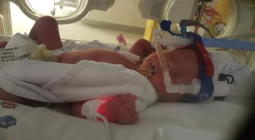 pre existing heart condition pregnant twins