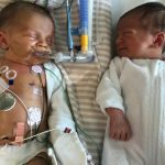 twins and Congenital Diaphragmatic Hernia