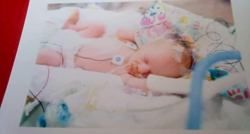 twin born early due to placenta abruption