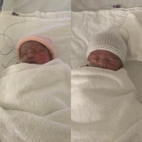 twins born at 34+5