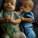 twins who have cerebral palsy