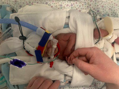 twins born at 25 weeks