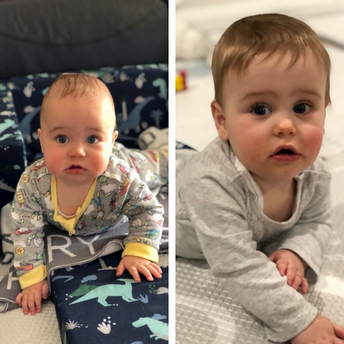 pregnant with twins and Peripartum Cardiomyopathy