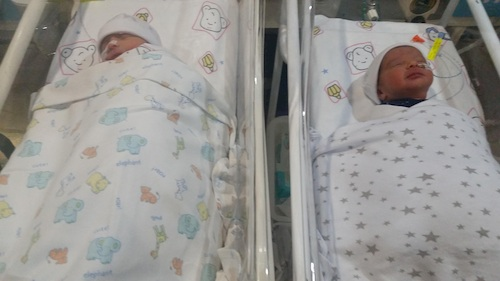 twins born with no epidural