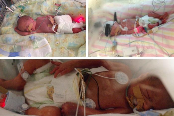babies born at 27 weeks